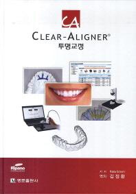 Clear-Aligner 투명교정