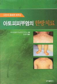 아토피피부염의 한방치료(사진과 증례로 배우는)
