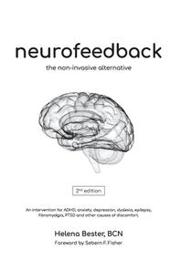 [해외]Neurofeedback