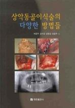 상악동골이식술의 다양한 방법들(양장본 HardCover)
