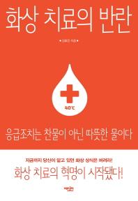 화상 치료의 반란