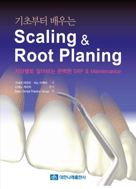 Scaling & Root Planing(기초부터 배우는)
