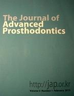 The Journal of Advanced Prosthodontics : 2013 February